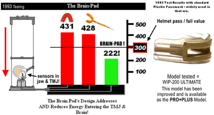 Brain-Pad 1993 Test
